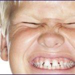 El bruxismo puede ocurrir por la hiperactividad del niño