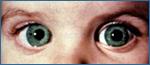 Los ojos muy grandes es un síntoma del glaucoma congénito