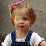 El parche es el tratamiento mas común para el ojo perezoso