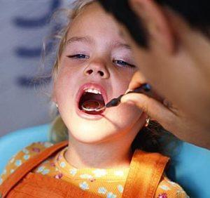 Tratamiento de caries en los niños